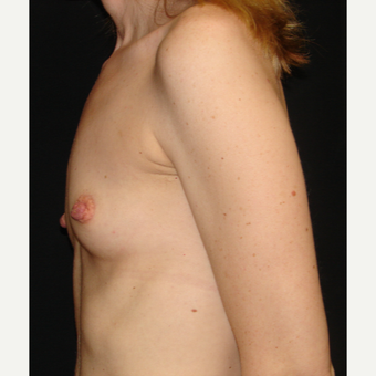 35-44 year old woman treated with Breast Implants before 3303981