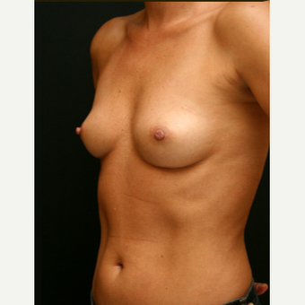 371 cc MP Gel Breast Augmentation before 3294077