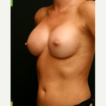 371 cc MP Gel Breast Augmentation after 3294077