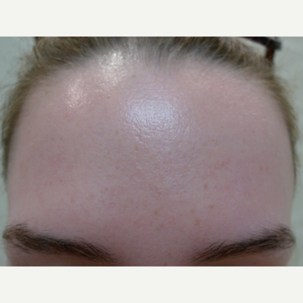 Acne treatments with peels after 3670365