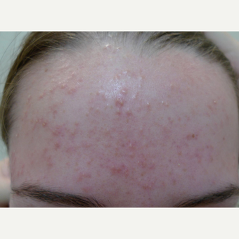 Acne treatments with peels