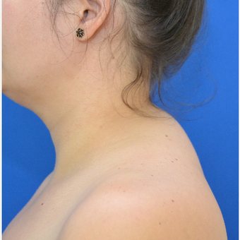 Buffalo Hump Reduction with Tumescent Liposuction before 3804284