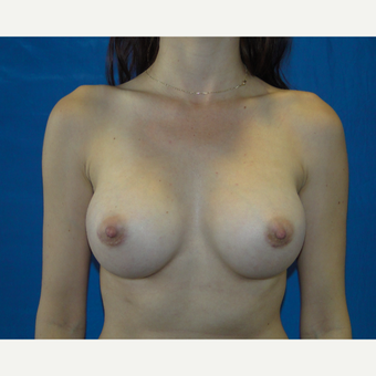 Breast Augmentation with 300 cc silicone implants after 3537390