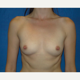Breast Augmentation with 300 cc silicone implants before 3537390