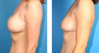 Breast Implant Revision after 562113