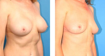 Breast Implant Revision 562113