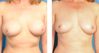 Breast Implant Revision before 562113