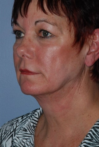 60 year old female SmartLipo of the neck and jawline 961887