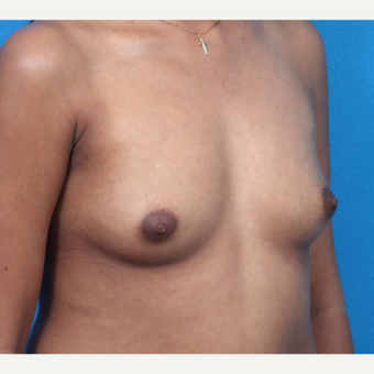 18-24 year old woman treated with Breast Augmentation before 3266374