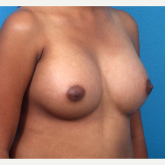 18-24 year old woman treated with Breast Augmentation after 3266374