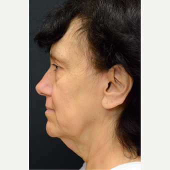55-64 year old woman treated with Facelift and Necklift before 3776496