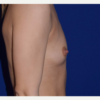 35-44 year old woman treated with Breast Augmentation before 3079186
