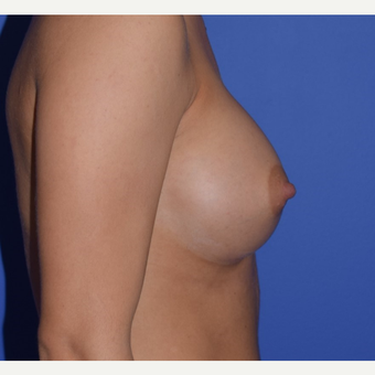 35-44 year old woman treated with Breast Augmentation after 3079186