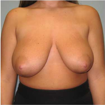 25 year old woman treated with Breast Reduction before 3468137