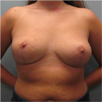 25 year old woman treated with Breast Reduction after 3468137