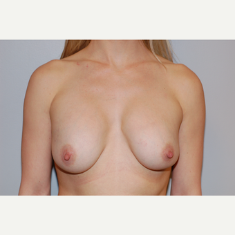 25-34 year old woman treated with Breast Implant Revision before 3129617