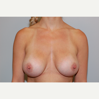 25-34 year old woman treated with Breast Implant Revision after 3129617