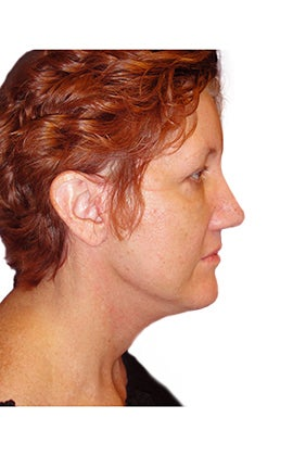 Rhinoplasty, closed technique with osteotomies after 401064
