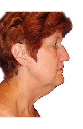 Rhinoplasty, closed technique with osteotomies before 401064