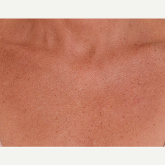 45-54 year old woman treated with Laser Treatment before 3105026