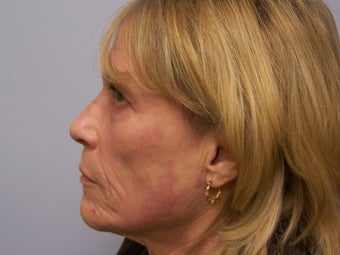 Ablative Laser Resurfacing  after 696234