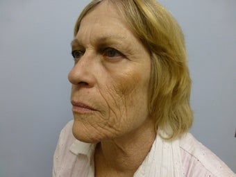 Ablative Laser Resurfacing  696234