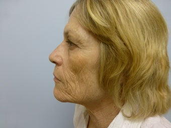 Ablative Laser Resurfacing  before 696234