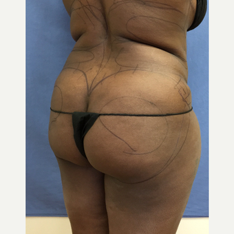 35-44 year old woman treated with Smart Lipo before 3372561