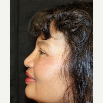 55-64 year old woman treated with Rhinoplasty after 3333263
