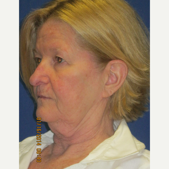 65 year old woman treated with Face Lift, Upper Lid Blepharoplasty, and Fractional CO2 Laser before 3429359