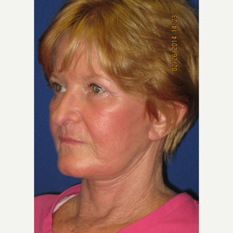 65 year old woman treated with Face Lift, Upper Lid Blepharoplasty, and Fractional CO2 Laser after 3429359