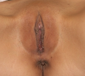Labiaplasty after 935002