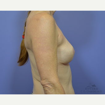 55-64 year old woman treated with Breast Implant Removal after 3421741