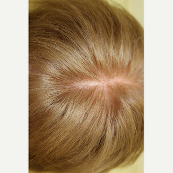 65-74 year old woman treated with PRP for Hair Loss after 3385483