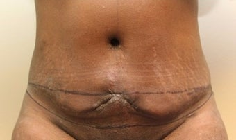 35-44 year old woman treated with Tummy Tuck Revision before 2075368