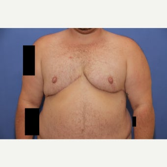 30 year old trans man treated with FTM Chest Masculinization Surgery after 2096369