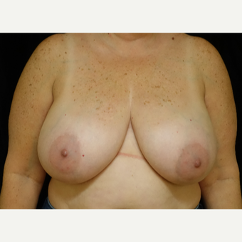 45-54 year old woman treated with Breast Reduction before 3369931
