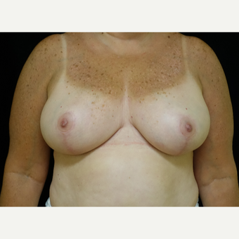 45-54 year old woman treated with Breast Reduction after 3369931