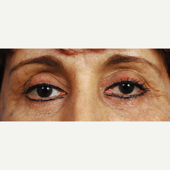 45-54 year old woman treated with Eyelid Surgery after 3453927