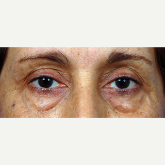 45-54 year old woman treated with Eyelid Surgery before 3453927