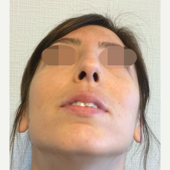 25-34 year old woman treated with Rhinoplasty before 3801364