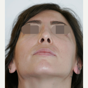 25-34 year old woman treated with Rhinoplasty after 3801364