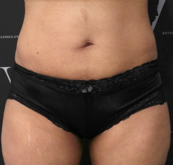Get rid of the muffin top with CoolSculpting after 3070131