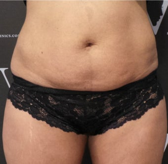 Get rid of the muffin top with CoolSculpting before 3070131