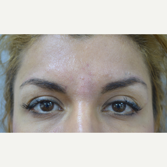 25-34 year old woman treated with Injectable Fillers for deep lines after 2979376