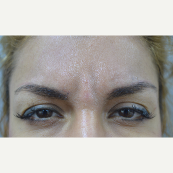 25-34 year old woman treated with Injectable Fillers for deep lines before 2979376