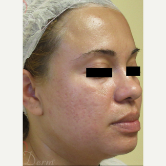 25-34 year old woman treated with Acne Scars Treatment after 3375124