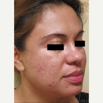25-34 year old woman treated with Acne Scars Treatment before 3375124