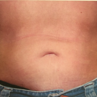 25-34 year old woman treated with Liposuction after 3019357