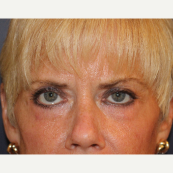55-64 year old woman treated with Eyelid Surgery after 3094011